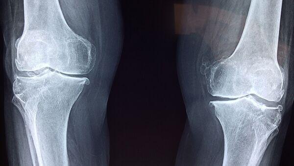 Zdjęcie rentgenowskie kolana - Sputnik Polska