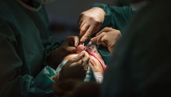 Operacja plastyczna nosa - Sputnik Polska