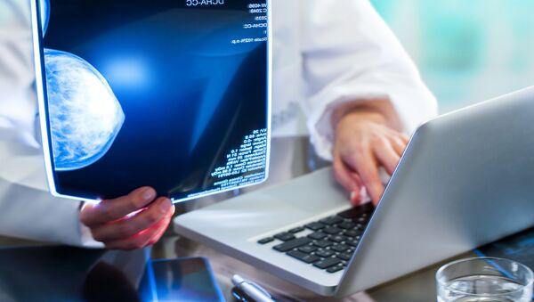 Lekarz analizuje wyniki mammografii - Sputnik Polska
