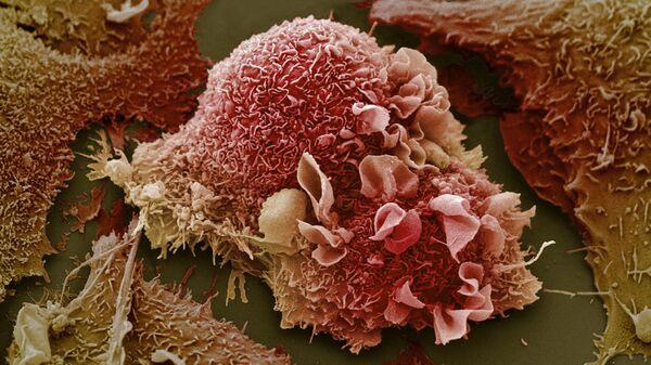 Rak płuc - Sputnik Polska